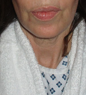 Before a necklift procedure with Dr Dirk Kremer 1