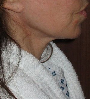 Before a necklift procedure with Dr Dirk Kremer 2