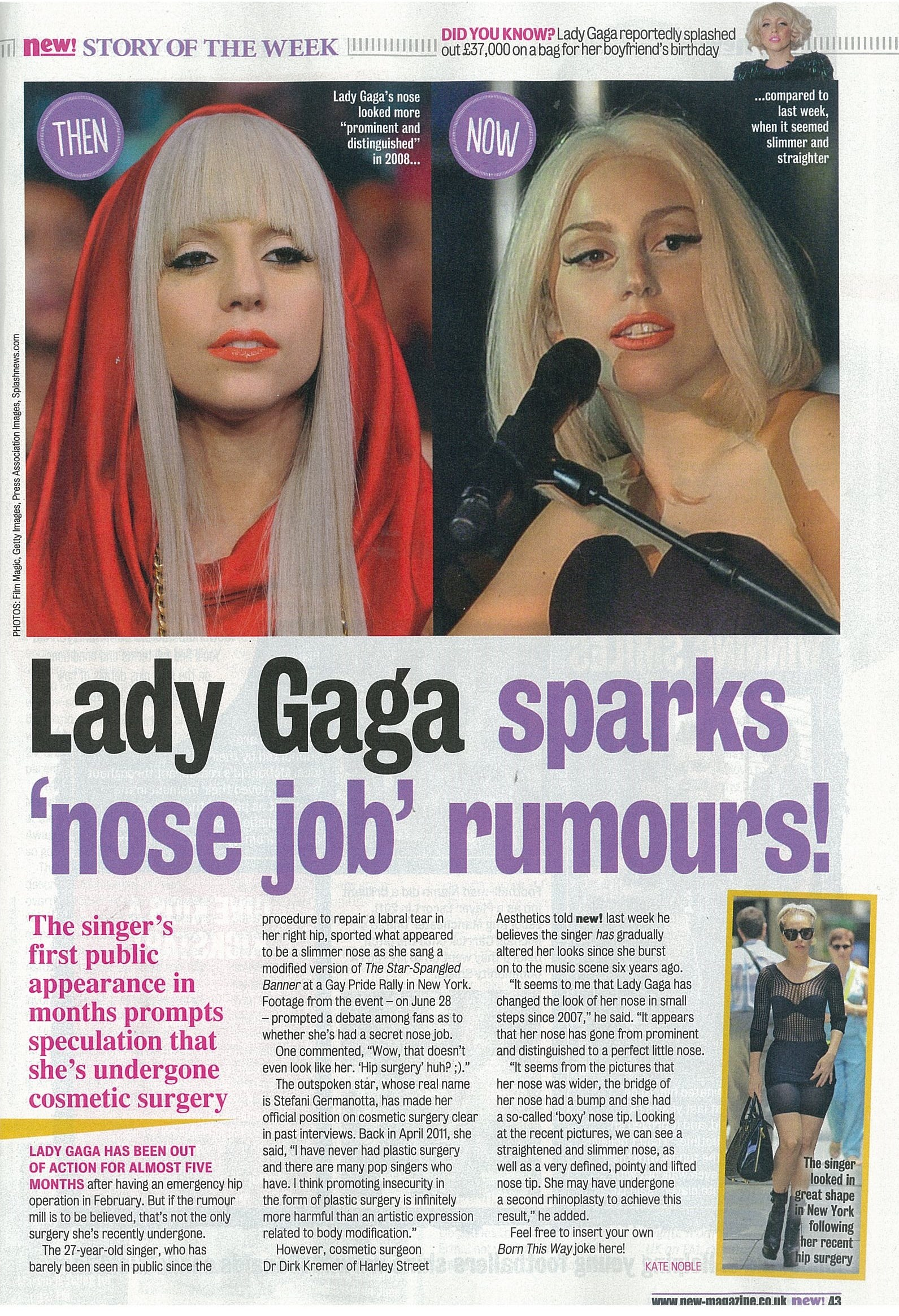 """article of lady gaga Follow the topics within this article lady gaga """"if you look different, even if you shock people, they give you money,"""" explained rick """"rico"""" genest in 2012."""