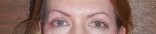 Blepharoplasty: after