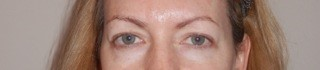 Blepharoplasty: before
